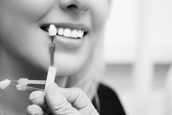 Teeth Whitening | Flanigan Dentistry | Denver Dentist