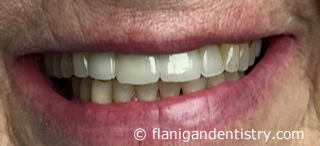 Flanigan Dentistry | Denver Dentist | Implants After